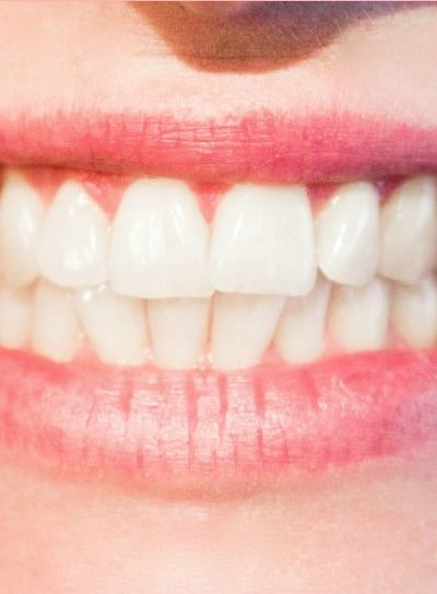 3 of the Best Ways to Prevent Cold Sores
